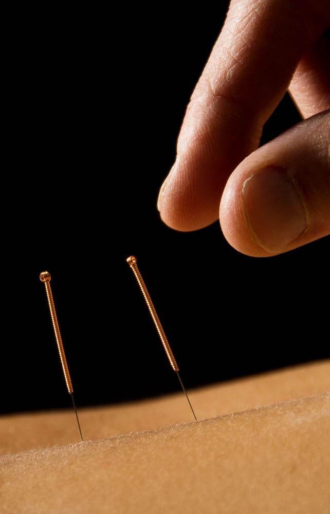 Acupuncture education /Acupunctuur opleiding: Shenzhou Open University of TCM