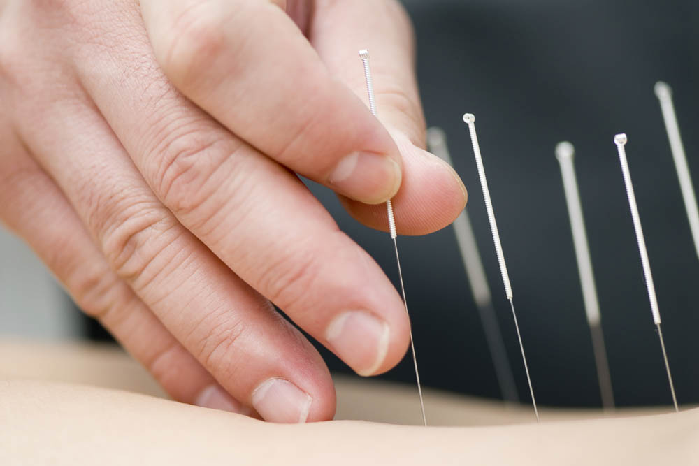 Webinar: Oncology acupuncture